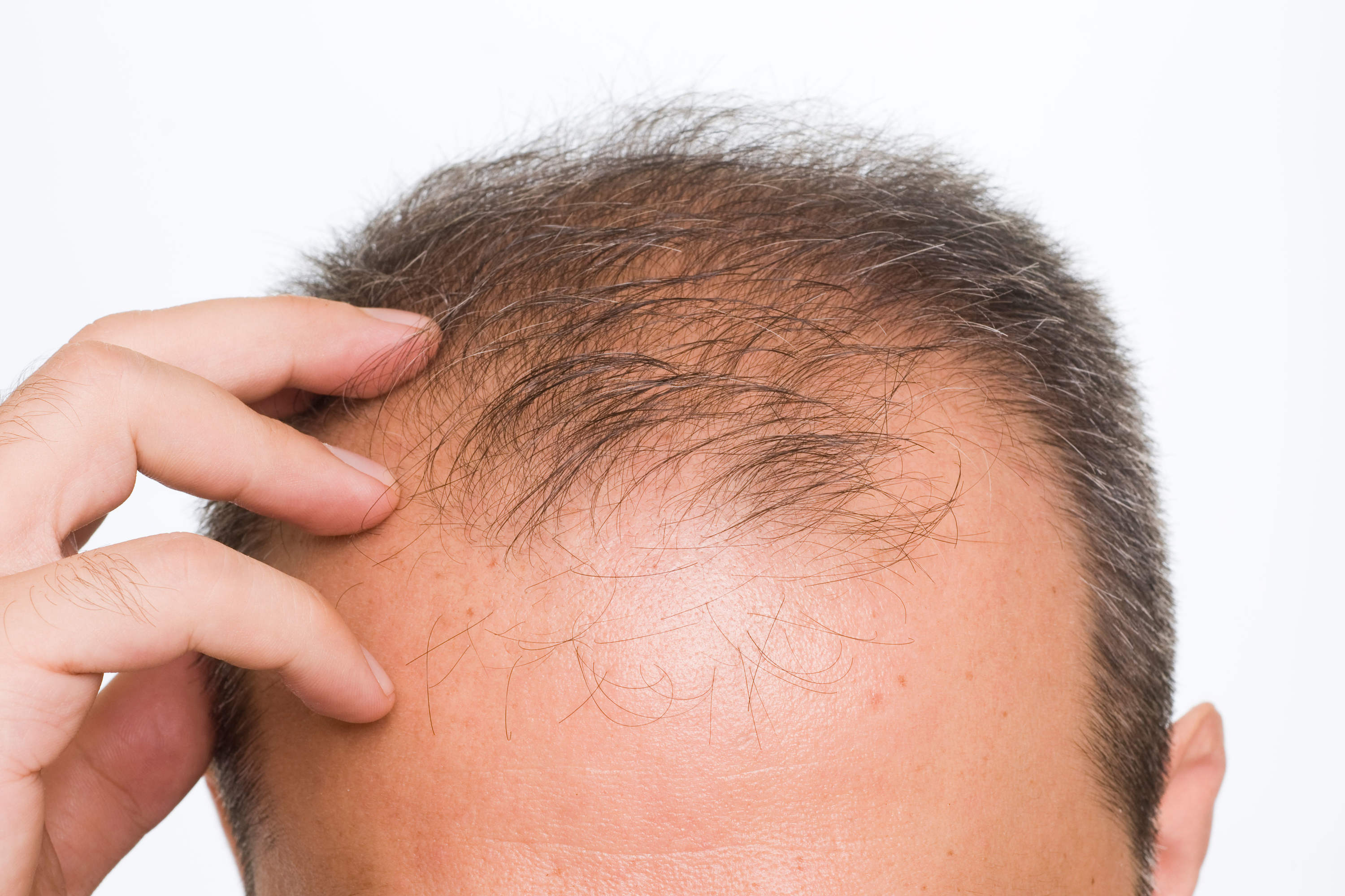 Hair loss becomes latest plague from 2020 as the stress literally makes people's hair fall out